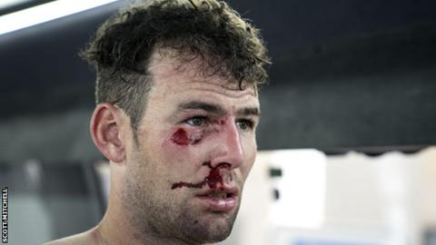 Mark Cavendish was injured twice in March